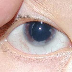 急性闭角型青光眼