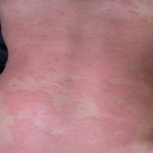 荨麻疹图片