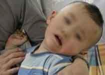 警惕这四种典型症状 预防患上小儿脑瘫