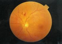 视网膜静脉阻塞怎么办 四种方法能治疗