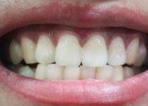 得了牙体牙髓病可以用根管治疗你知道吗