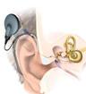 人工耳蜗纳入深圳社会医疗保险支付范围