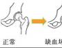 通络生骨胶囊如何治疗股骨头坏死?